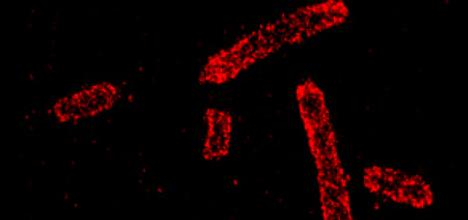 Super resolution imaging of E. Coli cells